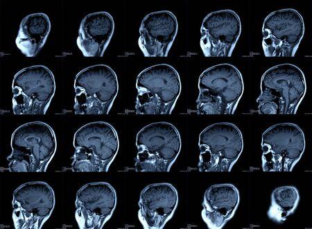 Imágenes de rayos X del cerebro o imágenes de resonancia magnética (resonancia magnética) del paciente.