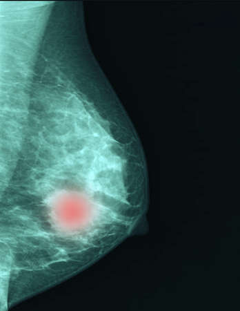 cancer images from checkup mammogram of women patient.