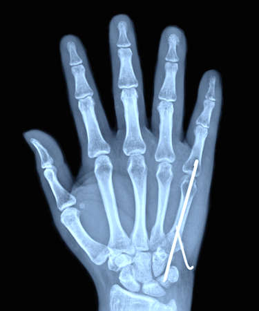 hand and finger x-ray images of patient to broken and Iron welt.