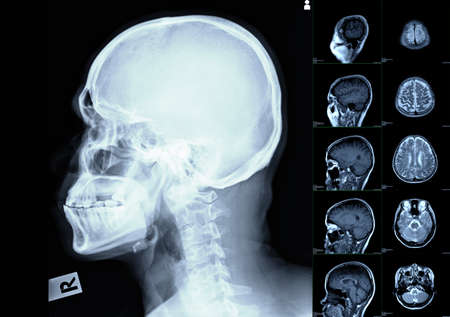 CT scan of brain image. test result for hemorrhagic stroke or Ischemic stroke.