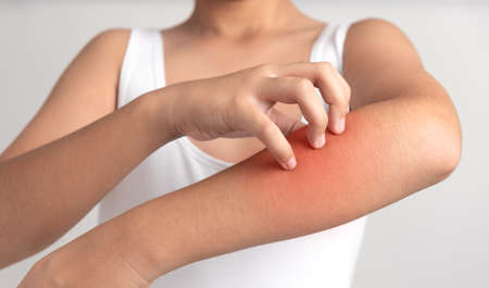 Itching of skin diseases in man using the hand-scratching.