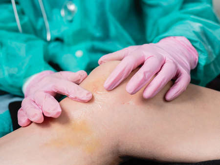 Doctor in gloves, close-up smears anesthetic ointment on knee injury in clinic.