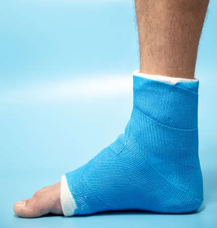 Blue splint ankle. Bandaged leg cast on male patient on light blue blurred background. Sports injury concept.