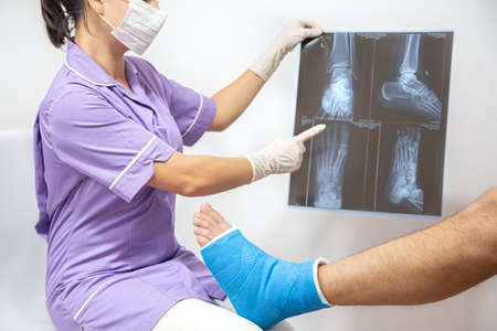 Female doctor in a blue medical gown checking broken leg and shows the male patient lateral projection x-ray of foot and ankle.