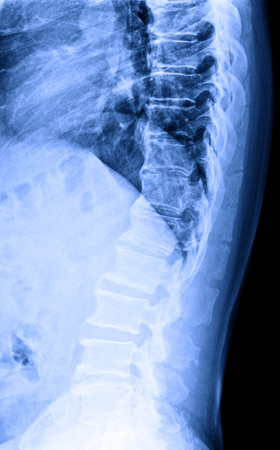 X-Ray image of male human lumbar spine (L-S spine) for medical diagnosis. Lateral view. Stock fotó