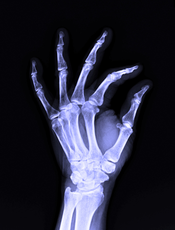 X-Ray image of male human left hand for medical diagnosis