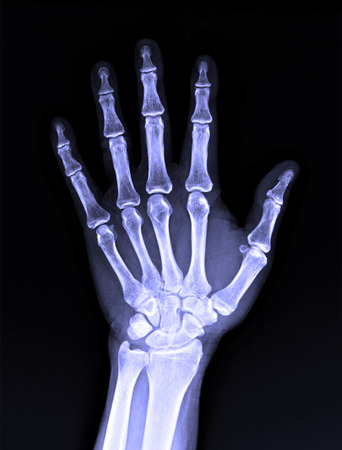 thumb x ray: X-Ray image of male human hand for medical diagnosis
