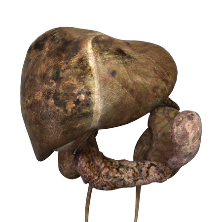Digital en 3D render de un hígado enfermo humano, renal y del bazo aisladas sobre fondo blanco Foto de archivo - 24917507