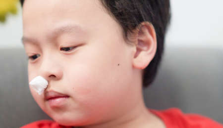 asian little boy nosebleed with gauze pack to stop epistaxis