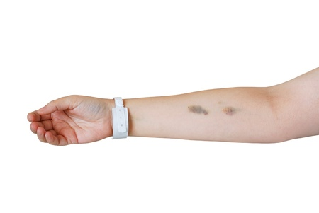 Caucasian women arm with bruises after injections and hospital  wristband isolated on white background
