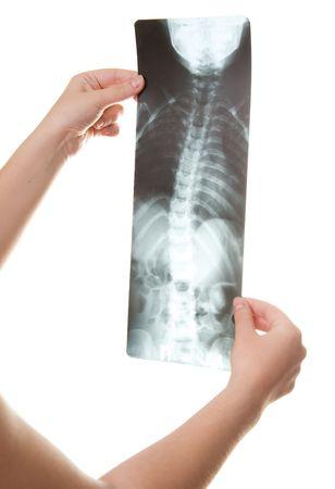 curvature: curvature of the spine roentgenogram
