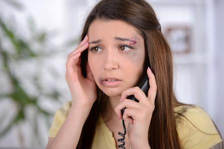 maltrato: Mujer asustada con la contusión en la cara de llamar para obtener ayuda. Sentado en el sofá en la sala de