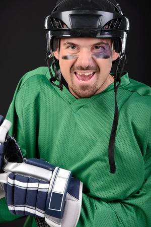 Funny hockey player smiling, bruise around the eye photo