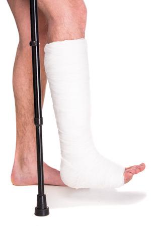 piernas hombre: Paciente de primer plano con la pierna rota en el elenco y el vendaje.