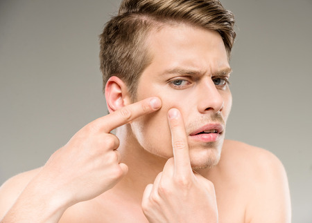 picking: Handsome man touching his face. Squeezing pimple.
