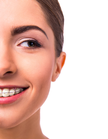 braces: Portrait of a beautiful woman with braces on teeth, isolated on a white background