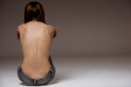 Rear view of topless thin woman with her spine and ribs visible Stock Photo