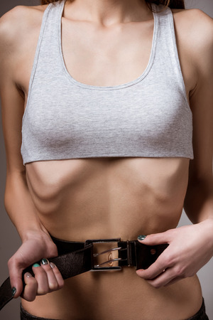 anorexia girl: Anorexia. Girl shows thin stomach and ribs close-up