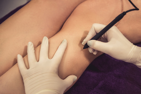 Cropped image of woman legs getting the laser epilation
