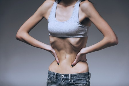 Woman Hold Hands in Belly Ribs. Isolated Background. Girl Show Skinny Waist. Anorexia Concept. Abnormal Weight Loss. Unhealthy Nutrition and Diets. Wrong Diet. Unhealthy Woman. Lose Weight.