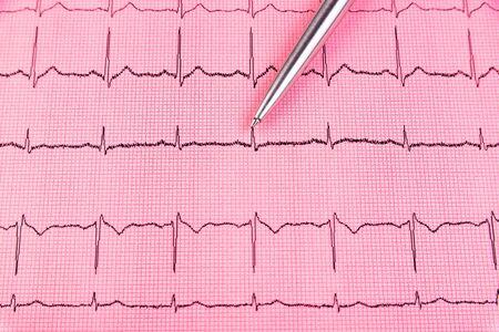 Silver pen and cardiogram line close up Zdjęcie Seryjne