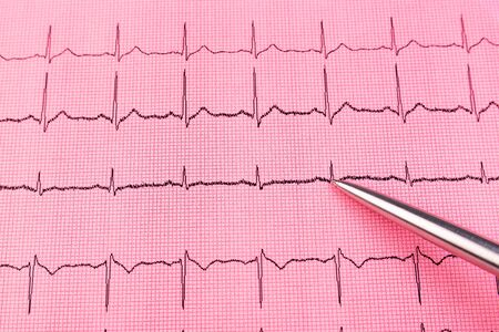 Silver pen and cardiogram line close up Stock Photo