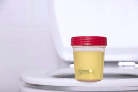 A urine sample in a medical container sits on the rim of a white household toilet. Selective focus. Archivio Fotografico