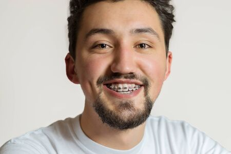 Portrait of a young man with braces smiling. A happy young man with braces on a white background. 스톡 콘텐츠
