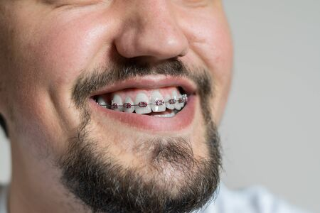 Close up of a young man with braces smiling. Macro shot of a young man with braces on a white background.