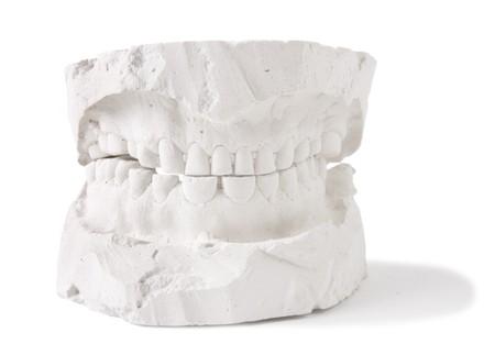 dentition: dental prosthesis Stock Photo