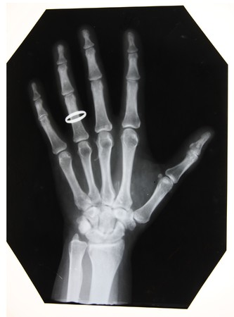 black and white photo of x-ray picture of woman hand with the ring
