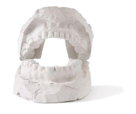 dental prostesis photo
