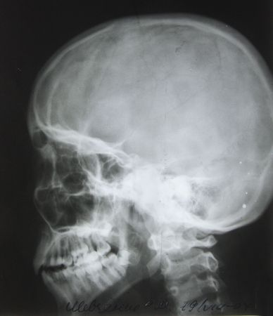 photo of side x-ray picture of human skull in natural colors