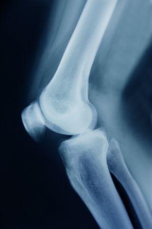 luxacion: Imagen de rayos x que muestra las articulaciones de la rodilla con artrosis