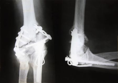 X-ray picture showing fractured elbow with different metal fixators photo