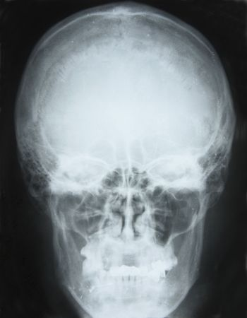 maxilla: photo of frontal x-ray picture of human skull in natural colors