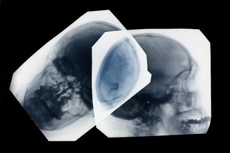 radiogram: photo of side and frontal x-ray pictures of human skull in natural colors - positive