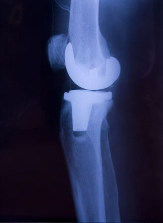 replacements: Total knee replacement x-ray side picture Stock Photo