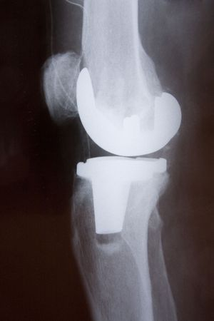 Total knee replacement x-ray side picture Stock Photo