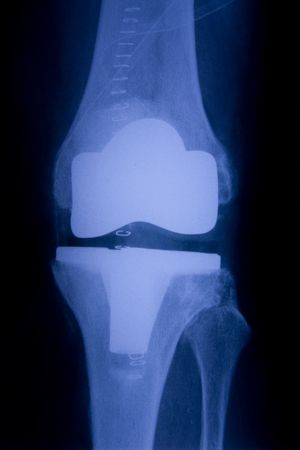 Total knee replacement x-ray front picture Stock Photo
