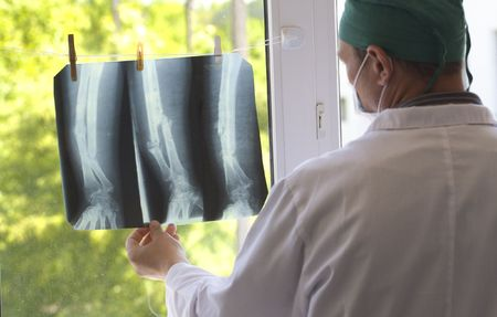 doctor watching x-ray pictures Stock Photo