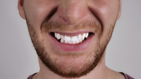 part of face caucasian man. Unrecognizable male with beard anger. Person showing grin