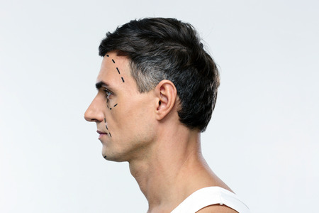 side view: Side view portrait of a man marked with lines for plastic surgery Stock Photo