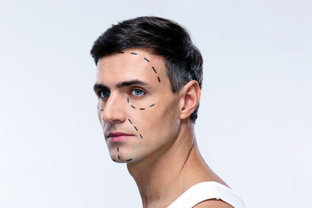 Man marked with lines for plastic surgery looking away