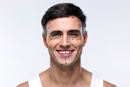 plastic surgery: Smiling man marked with lines for plastic surgery