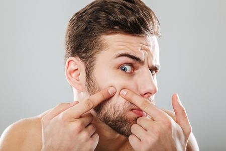 Fechar o retrato de um homem espremer espinhas no rosto isolado sobre o fundo cinza