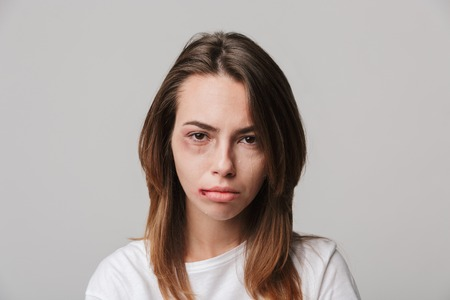 Portrait of a disabled young girl with scratches and bruises on her face looking camera.