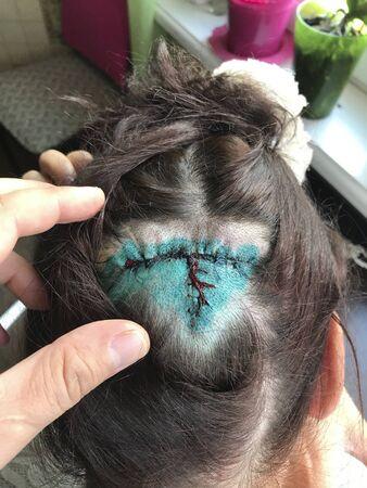 Naht nach plastischer Operation am Kopf einer Frau. Sichtbar sind Strähnen, rasierte Haare und eine mit Grün behandelte Stelle. Beseitigen Sie Hautflecken, an denen keine Haare wachsen.
