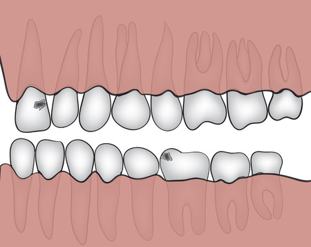 munch: Figure jaw with teeth closeup made in vector graphics Illustration