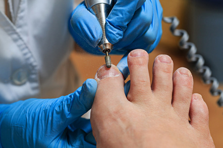 foot doctor: Process pedicure close up in a fashionable spa salon, unrecognizable people